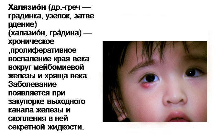 Симптомы халязиона у детей