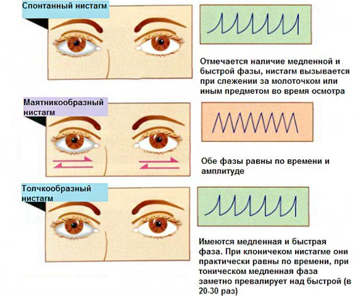 Виды нистагма глаза