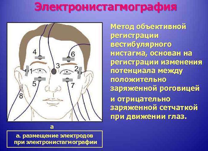 Принцип электронистагмографии