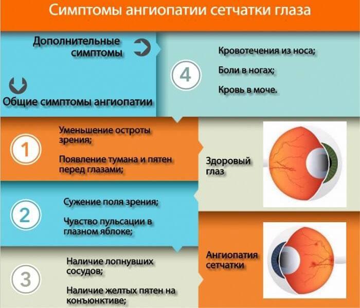Симптомы ангиопатии