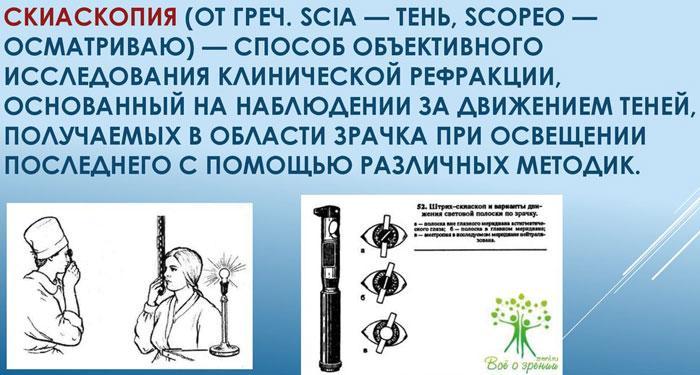 Принцип Скиаскопии