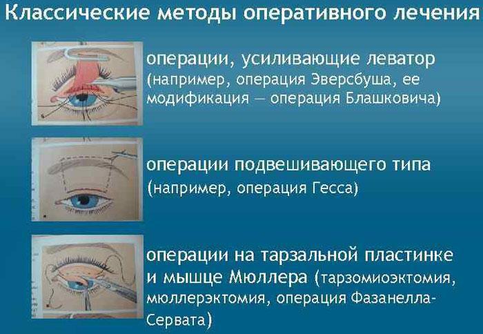 Методы оперирования, лечения птоза века