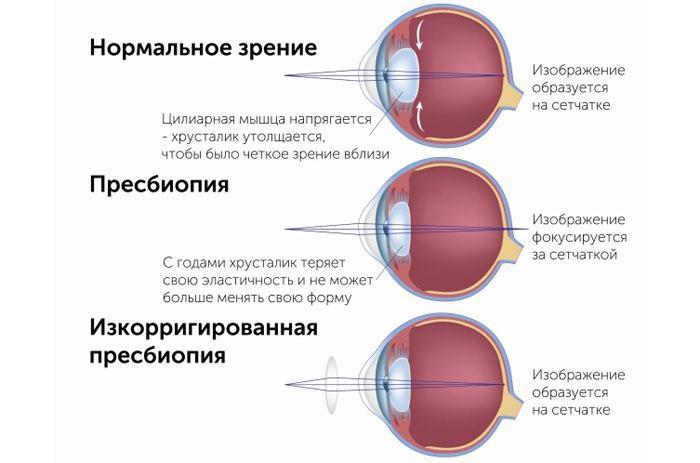 Что такое пресбиопия глаза