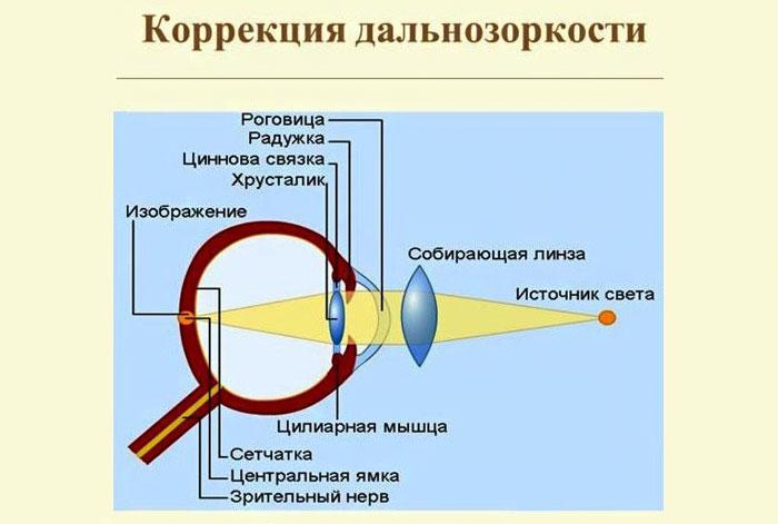 Коррекция пресбиопии контактными линзами