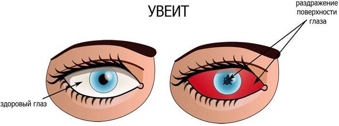 Симптомы увеита
