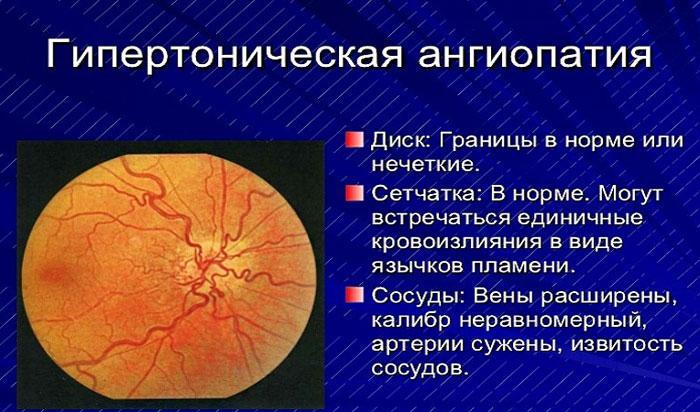 Гипертоническая ангиопатия