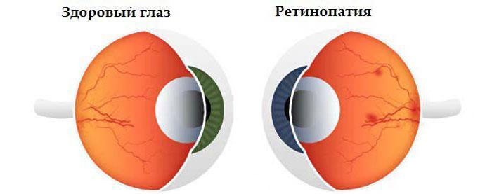 Симптомы ретинопатии