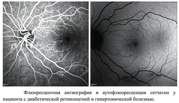 Флюоресцентная ангиография сетчатки глаза при ретинопатии