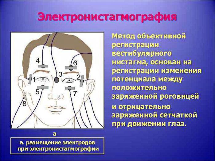 Как проводится электронистагмография