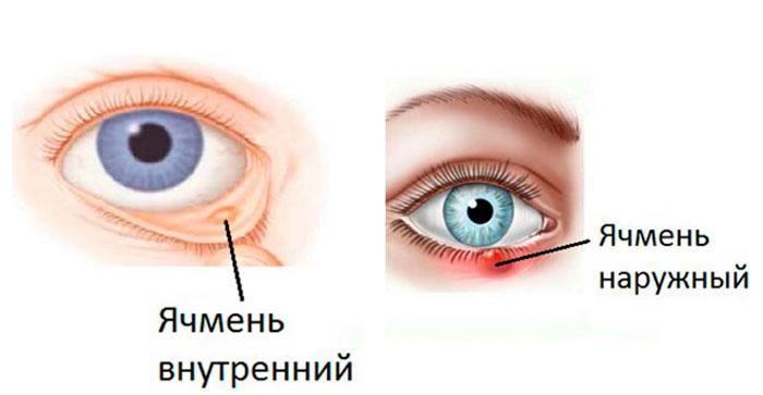 Левомицетин при ячмене на глазу