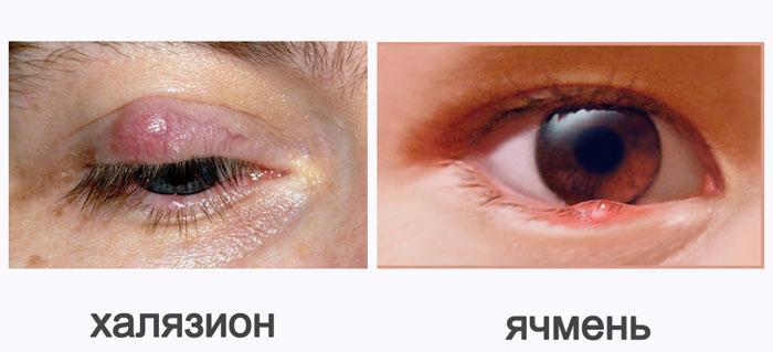 различия халязиона и ячменя