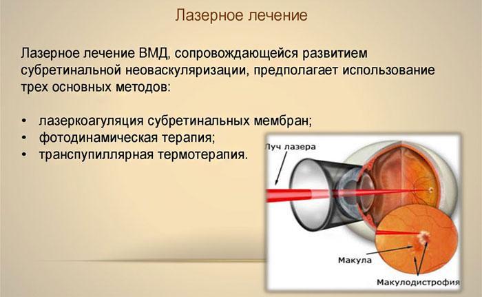 Лазерное лечение ВМД