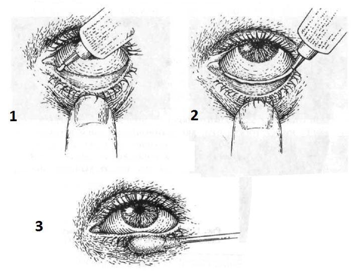 Как наносить глазные мази