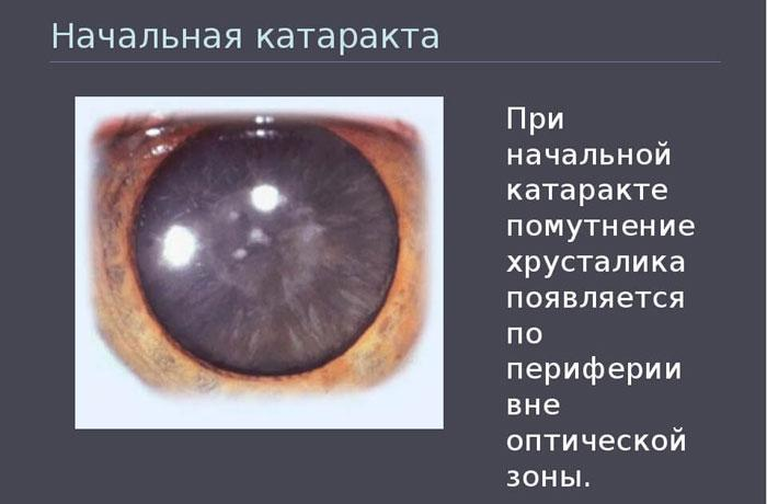Симптомы начальной катаракты