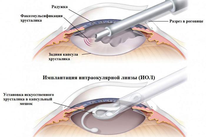 Удаление хрусталика глаза и введение ИОЛ