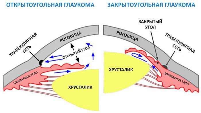 Отличие закрытоугольной глаукомы от открытоугольной