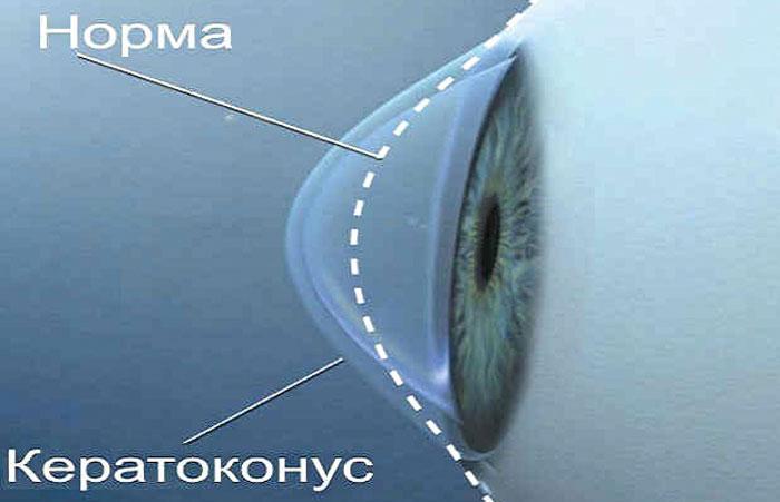 Что такое кератоконус