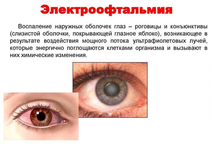 Что такое электрофотоофтальмия