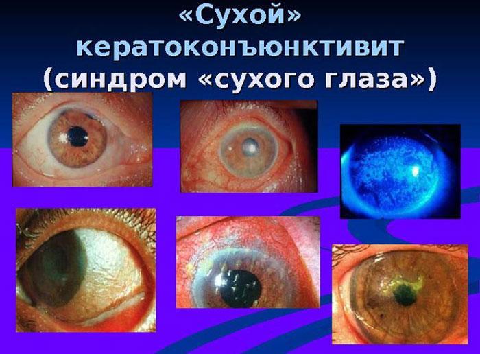 Симптомы сухого кератоконъюктивита
