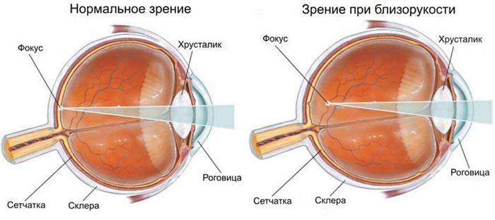 Симптомы близорукости
