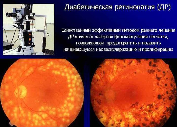 Лазерная фотокоагуляция при лечении диабетической ретинопатии