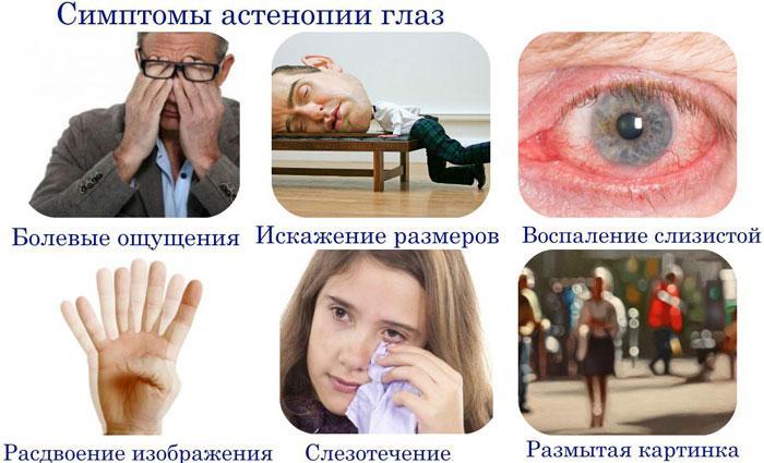 Симптомы астенопии глаз