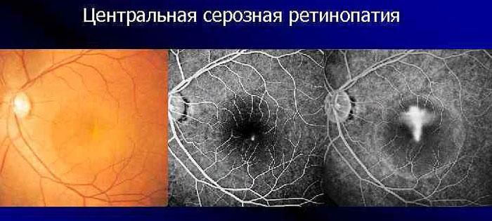 Центральная серозная ретинопатия