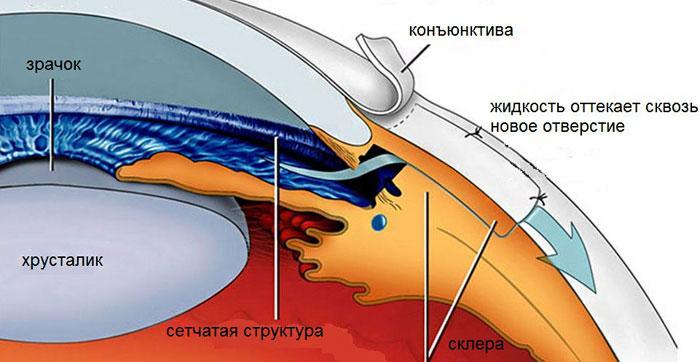 Дренажная операция при глаукоме