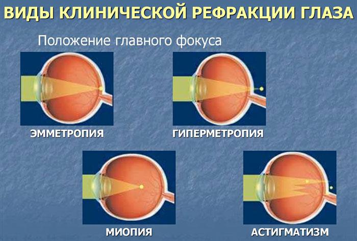 Виды клинической рефракции глаза