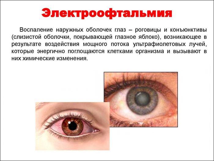 Симптомы электрофотоофтальмии