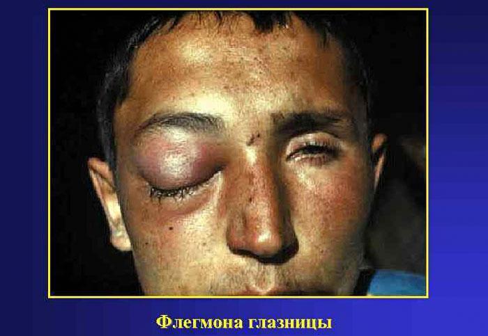Симптомы флегмоны глазницы