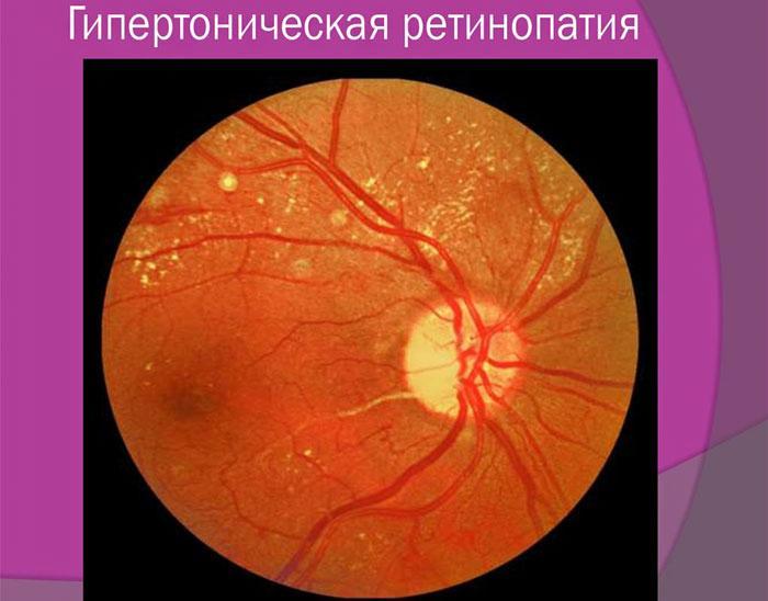 Гипертоническая ретинопатия