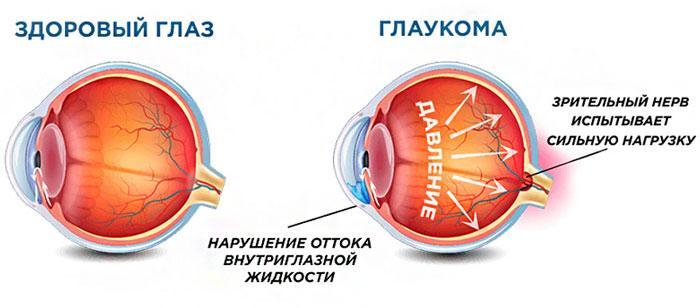 механизм глаукомы