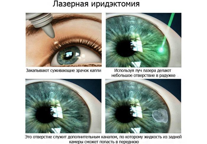 Принцип лазерной иридэктомии