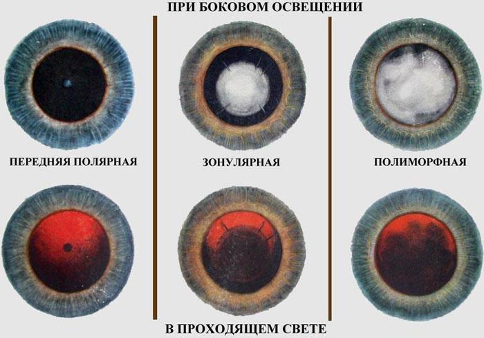 Виды катаракты