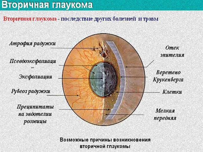 Причины вторичной глаукомы