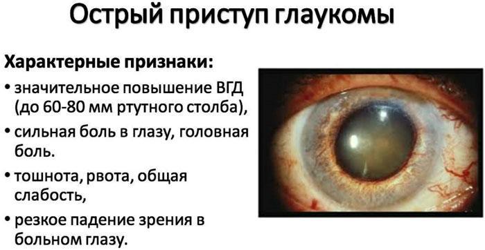 Симптомы острого приступа глаукомы