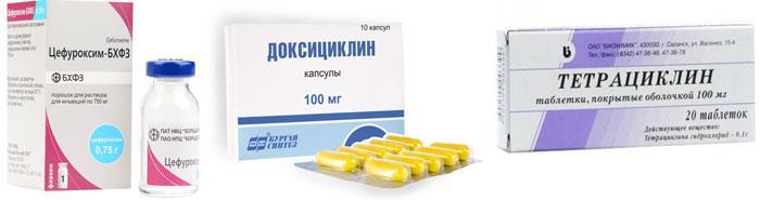 Лекарственные препараты для лечения дакриоцистита