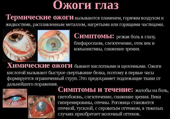 Симптомы химических и термических ожогов глаз