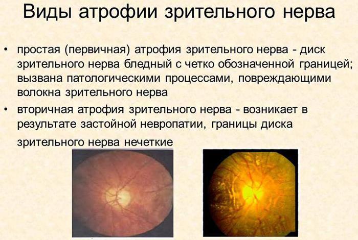 Виды атрофии зрительного нерва