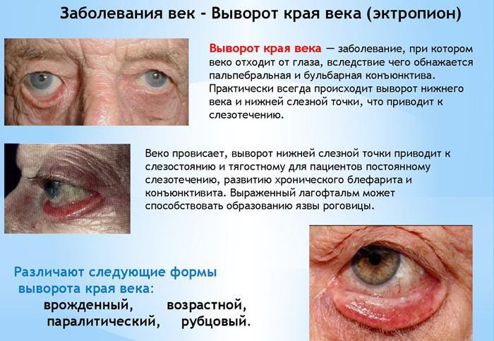 Симптомы выворота век