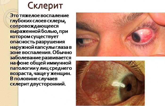 Что такое склерит, симптомы