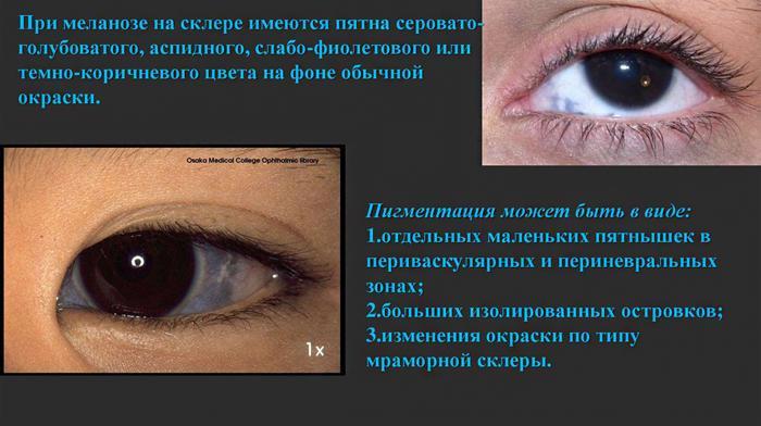 меланоз оболочки глаза симптомы