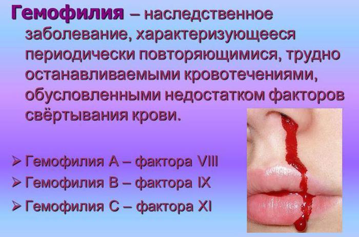 Что такое гемофилия