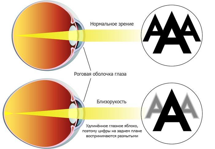 Симптомы близорукости(миопии)