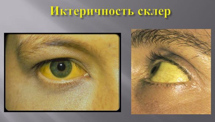 Иктеричность склер симптомы
