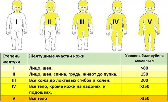 Степени желтухи новорожденных