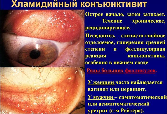 Симптомы хламидийного конъюнктивита