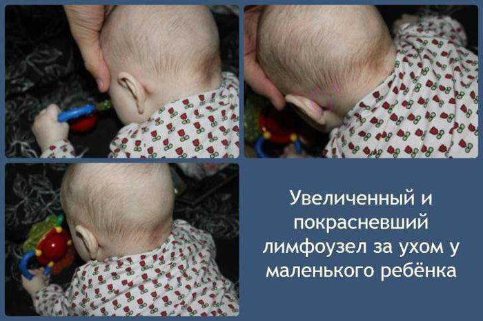 Воспаленный лимфоузел у маленького ребенка