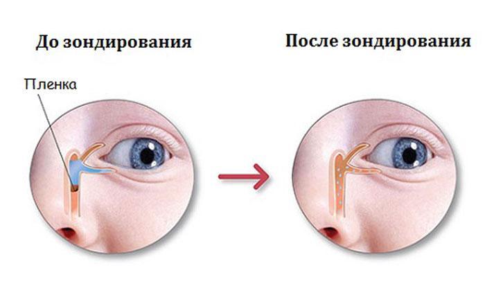 Зондирование слёзного канала
